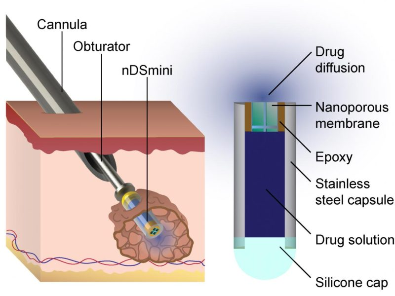 ImplantableDeviceTargetsCancer