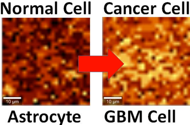 Normal-vs-GBM-astrocytes