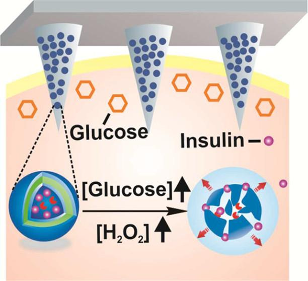 Toward-a-Smart-Patch-That-Automatically-Delivers-Insulin-When-Needed