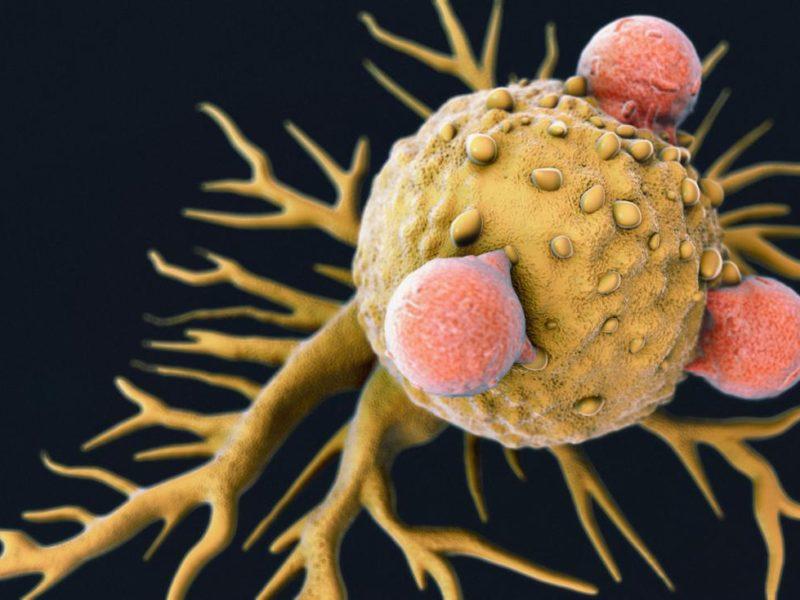 PoliovirusDestroysCancerCellsAndStopsTumorRegrowth