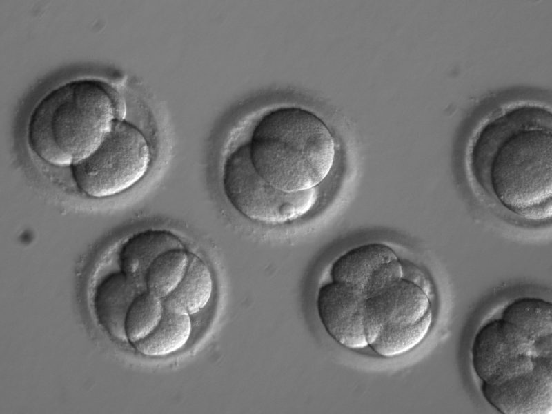 This image shows individual blastomeres within the early embryos two days after co-injection. As a result of initiating the repair process at the time of fertilization, a new study revealed that each new cell in the developing embryos was uniformly free of the disease-causing mutation. (OHSU)