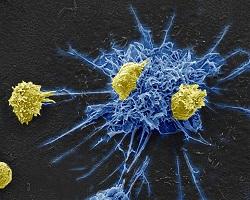ImmunotherapyKicksKillsHIVByExploitingCommonVirus