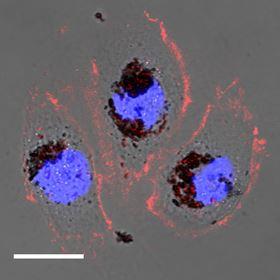 NewBiomaterialCanProtectAgainstHarmfulRadiation